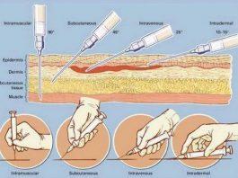 Как правильно делать инъекции. Важная информация