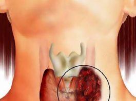 Так можно вылечить узел на щитовидной железе