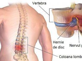 Настойка против остеохондроза и грыжи позвоночника от врача-онколога: результат ошеломляющий