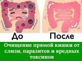 Выводим до 15 кг токсинов, накапливающихся в прямой кишке, понадобятся только два ингредиента