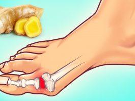 ИЗБАВЬТЕСЬ от мочевой кислоты и вылечите подагру. 10 натуральных средств