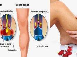 Как можно избавиться от варикоза и сосудистой сетки на ногах. Легкий способ
