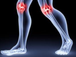 Укрепляйте ваши колени, восстанавливайте хрящи и связки с помощью этого лучшего напитка
