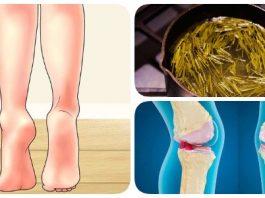Вылечила колени (артроз) и шпоры на пятке — уже давно хожу без трости