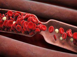 Густая кровь: народные способы разжижения