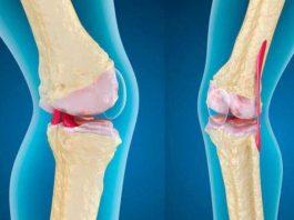 Вылечила колени (артроз), а также шпоры на пятке — уже давно хожу без трости