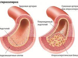 Cильная смесь – и артерии, вены начнут очищаться от бляшек, а проблемы с кровообращением и сердцем не будут беспокоить