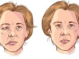 Первые признаки инсульта у женщин. Нужно действовать быстро