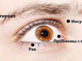 При Помощи 8 Сигналов Глаза Предупреждают О Проблемах Со Здоровьем. Обрати Внимание