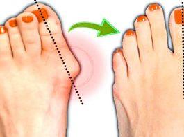 Эти народные способы уберут косточку на ноге. Большая шишка на ноге растает за неделю