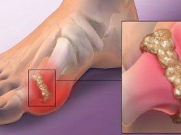 Лучший способ устранить мочевую кислоту, избавиться от боли в суставе и предотвратить развитие подагры