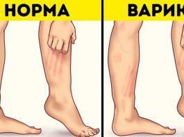 Мазь для лечения узлов на ногах — тромбофлебита и варикоза
