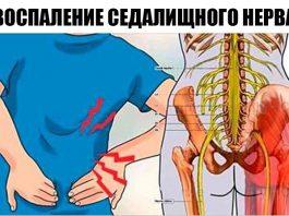От сильной боли седалищного нерва можно избавиться за 10 минут. Рассказываю