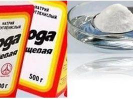 Вместо операции: Соль, сода, мед и спирт  — 40 лет назад вылечила согнутые пальцы простым способом