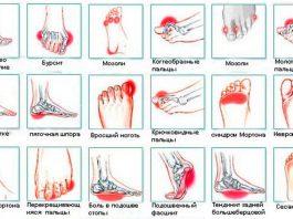 Всего за 5 минут вы избавитесь от боли в коленях, стопах, отёков, судорог и синдрома беспокойных ног