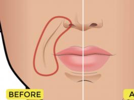 Носогубные складки долой: два пальца и 15 минут чтобы разгладить носогубные складки
