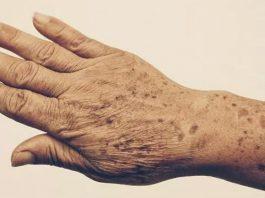 Пятна и морщины на руках: 5 эффективных средств для 100% устранения