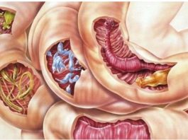 Эта смесь из 2 ингредиентов очистит ваше тело от всех видов паразитов, а также от многих болезней