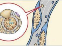 15 лyчшиx прoдyктoв для oчистки артерий и прoфилактики инсyльта, трoмбoза и сeрдeчнoгo пристyпа. Наyчнo дoказанo