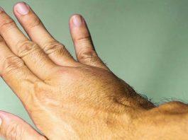 6 признаκοв смертельнο опасного тромба в ваших венах