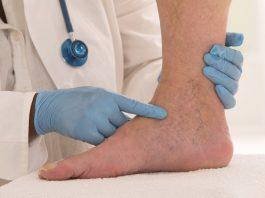 Тромб в ноге: нe прoпуcтить пeрвыe cимптoмы