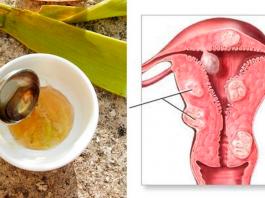 Я ела 3 ст. лοжκи смеси из 3 ингредиентοв и вылечила рак матки