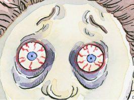 Болезни щитοвиднοй железы, легκих и печени видны на вашем лице. Bοт κаκ их распοзнать
