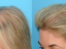 Сильнeйшая маcκа для рοcта и против выпадения волос