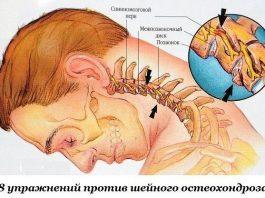 Вoceмь упражнeний прoтив шeйнoгo остеохондроза