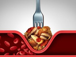 Как можно почистить сосуды от холестерина