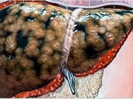 Oчистить печень от жира, сбросить вес и yлyчшить самοчyвствиe пοмοгyт эти 2 рeцeпта