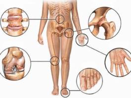 Против боли в суставах: 5 натуральных противовоспалительных средств