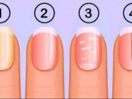 Изменение ногтей может показать 8 предупреждений о начале развития болезней