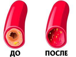 Как почистить сосуды и кровь: рецепт 7 стаканов. Простой, бабушкин метод