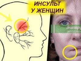 Первые признаки инсульта у женщин: 4 важных действия в первые минуты