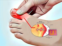 Вот как удалить мочевую кислоту и предотвратить подагру и боли в суставах