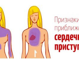 До сердечного приступа, ваше тело будет вам «сигнализировать» — Вот 5 признаков