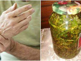 Уникальная настойка от моей бабушки — лечит суставы. Помогает при артрозе, атрофии мышц рук и ног, склеродермии