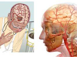 3 рецепта самых мощных напитков для улучшения кровообращения в головном мозге