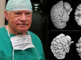 Неврологи бьют тревогу. Всем женщинам нужно прислушаться к этому совету