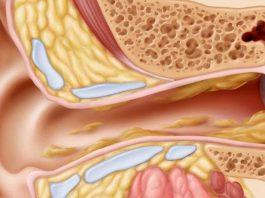 Узнайте, как быстро и естественно очистить уши и улучшить слух, избежать инфекций и воспаления