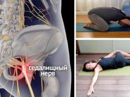 8 простых упражнений, которые помогут избавиться от защемления седалищного нерва