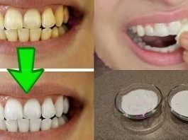 Отбеливание желтых зубов менее чем за 2 минуты