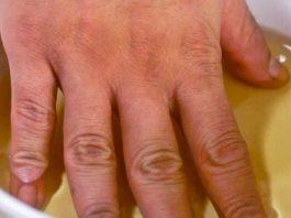 Боль в суставах рук, ног и шее: 3 мощных рецепта для быстрого устранения