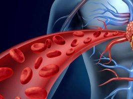Чистая кровь — основа основ. Мы часто лечимся таблетками и бегаем по врачам, когда все что нужно — почистить кровь