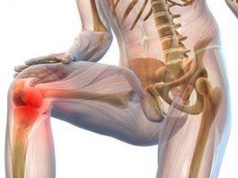 Почему хрустят суставы. Что мы должны об этом знать