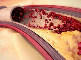 Как очистить сосуды от холестерина. Вот вам универсальный рецепт