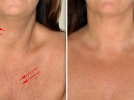 Применяй эти 4 ингредиента и кожа шеи и декольте будет, как в 20 лет