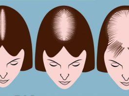 6 проблем с волосами являются симптомами серьёзных проблем со здоровьем