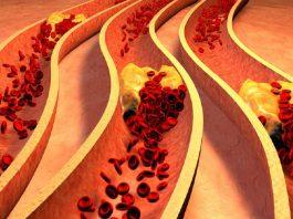 Это 8 тревожных сигналов организма о закупоренных артериях. Лучшие способы избавления